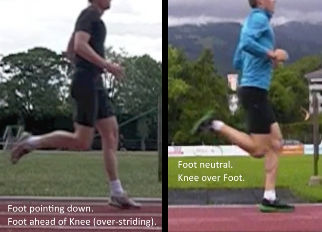 forefoot running and Calf pain