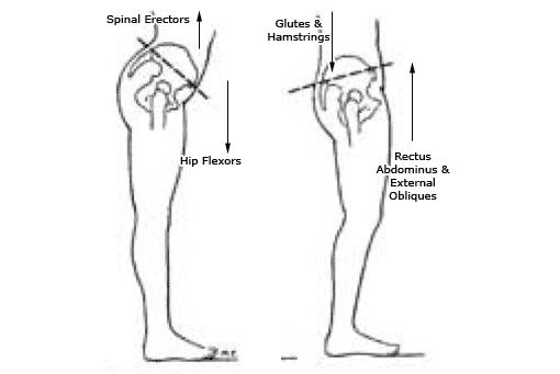 anterior pelvic syndrome