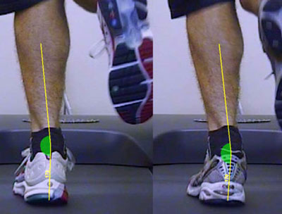 Traditional Gait Analysis