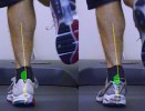 Foot Pronation: is the term 'Overpronation' valid