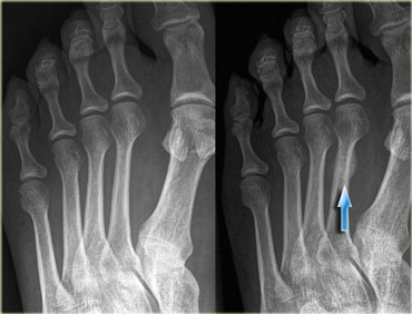 Metatarsal Stress Fracture: Rehab & Return to Running