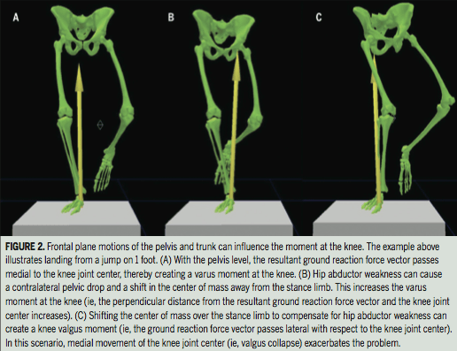 Unilateral Loading Biomechanics in ITB Syndrome