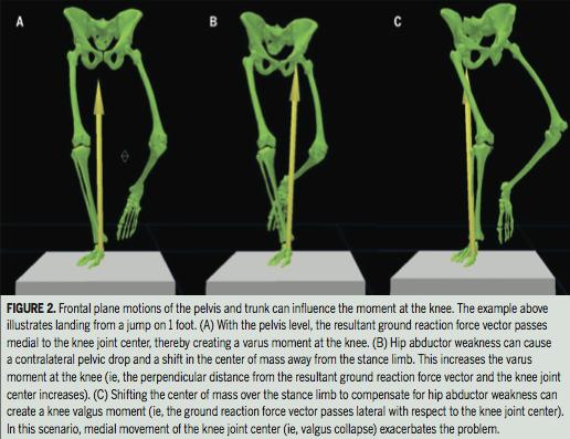 Patellofemoral Pain Syndrome - Unilateral Loading Biomechanics
