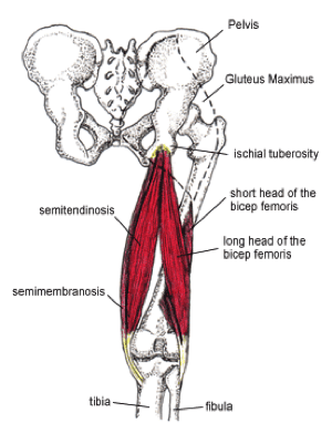 proximal hamstring tendinopathy pain in the butt video exercises rh kinetic revolution com Pressure Areas On Buttocks Back Pain Left Buttock