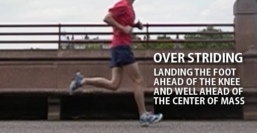Patellofemoral Pain Syndrome - Over striding runner