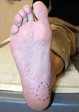 site of plantar fasciitis pain - where does plantar fasciitis hurt