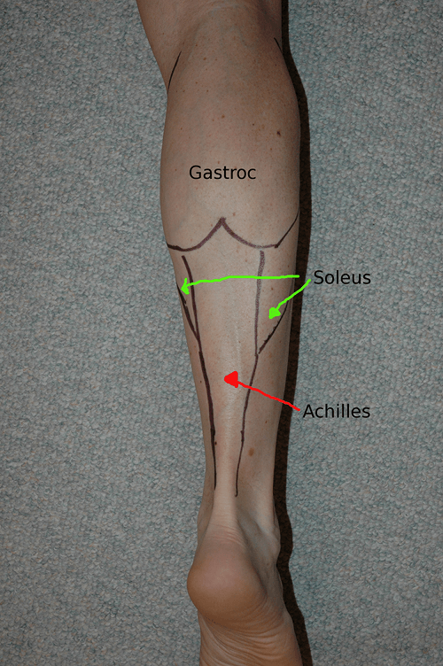 Where is the achilles tendon?