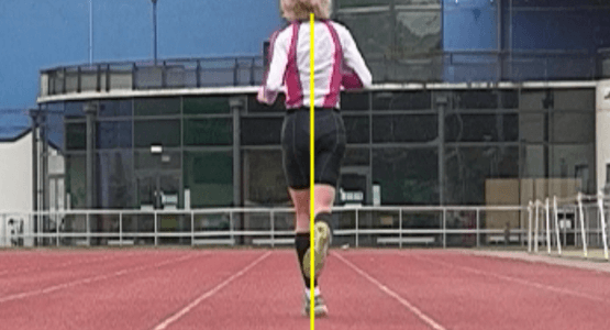 ITB Syndrome Rehab: Running Step Width Modification