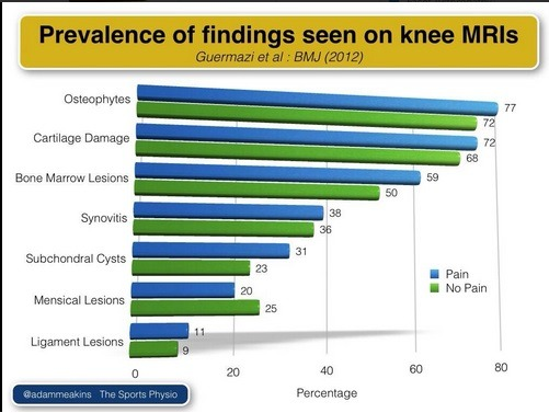 Knee Pain - Osteoarthritis Knee
