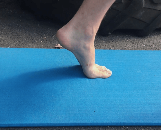 What is The Windlass Mechanism of The Foot?