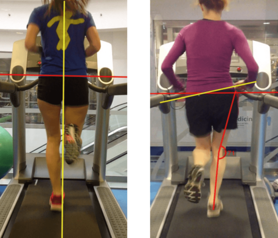 Runners with patellofemoral pain have altered biomechanics which targeted interventions can modify: A systematic review and meta-analysis